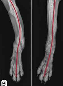 Before and after radiographs showing Fiona's limb straightening